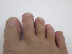 爪水虫(爪白癬)の種類